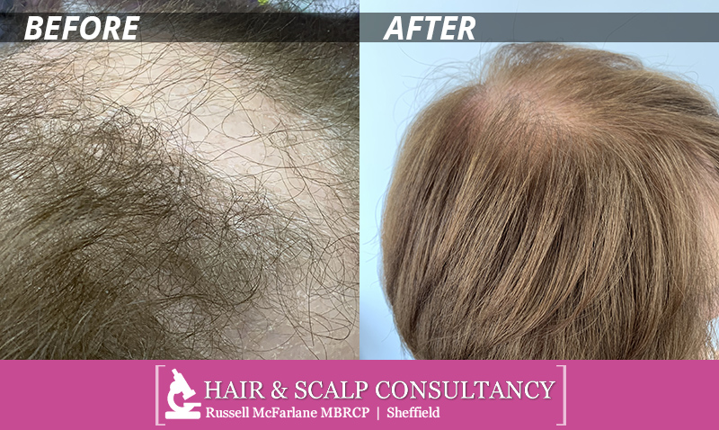 Hair & Scalp Consultancy before & after